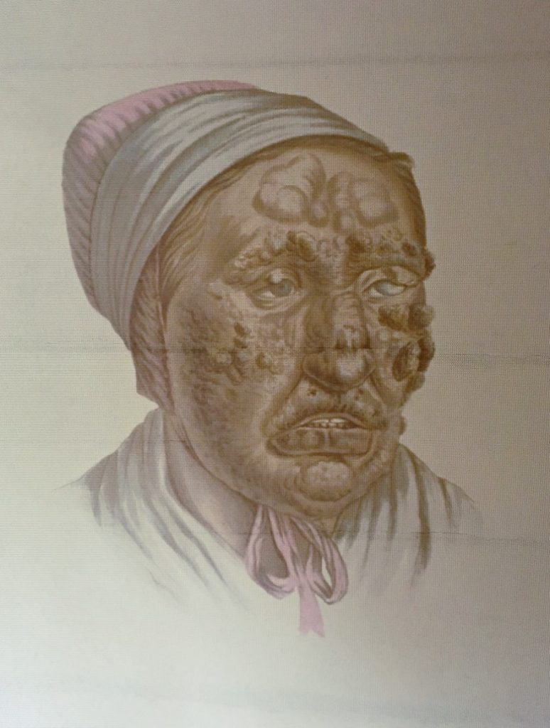 A picture of a leprosy patient in Bergen, Norway